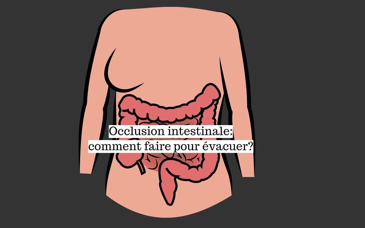 Occlusion intestinale: comment faire pour évacuer?